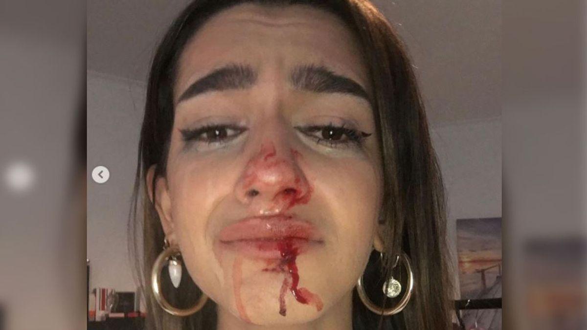 """Eva denuncia una agresión: """"Me han gritado '¡puto travelo!' y me han dado dos puñetazos en la cara"""""""
