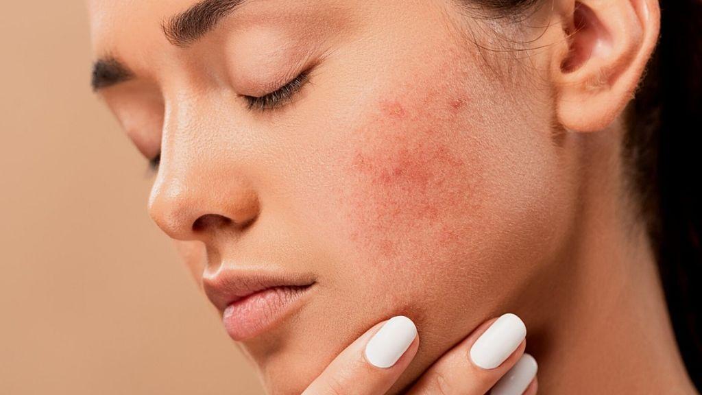 Una chica de 17 años se desfigura la cara al tratar de quitarse un grano