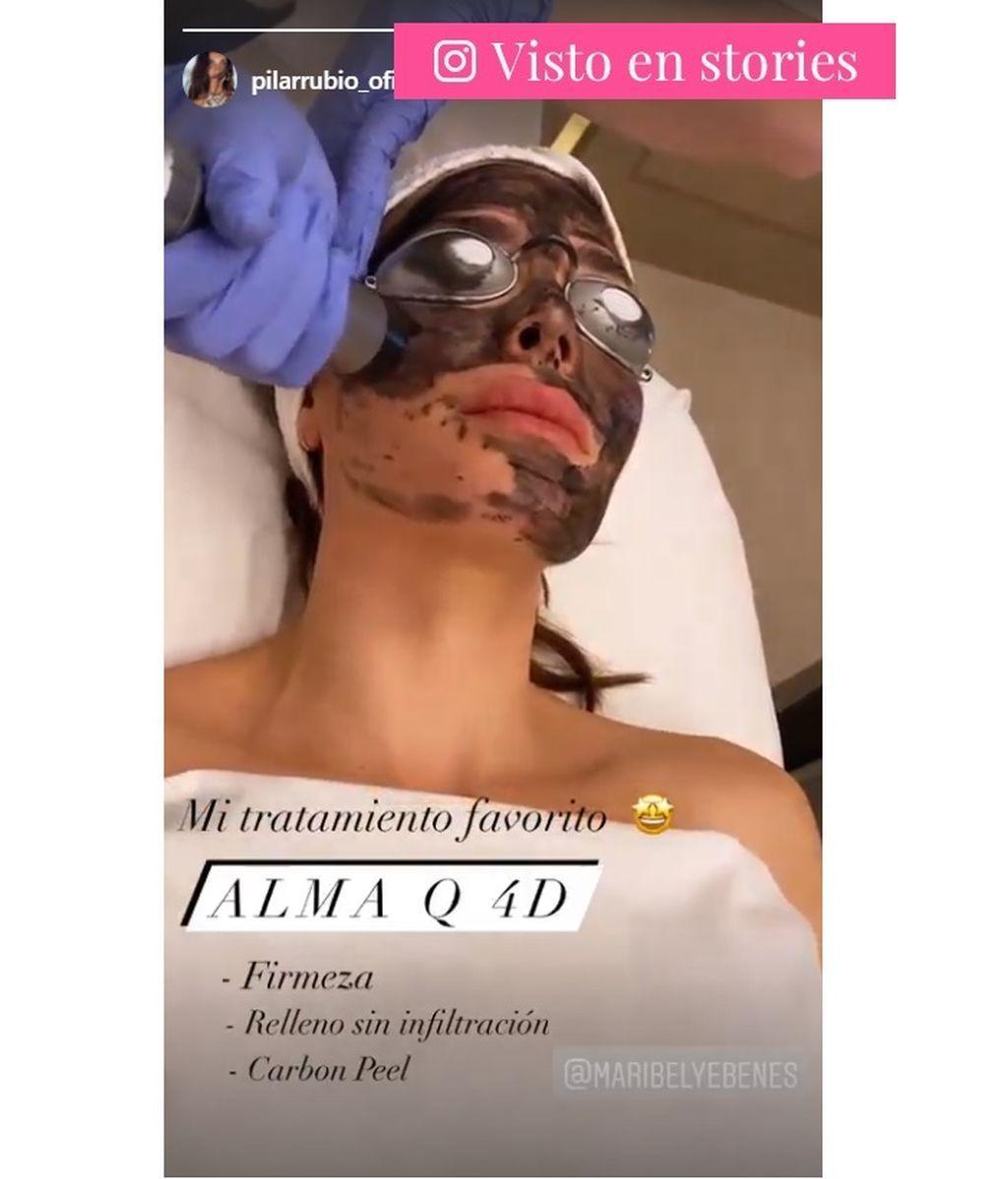 Pilar Rubio se muestra recibiendo un tratamiento de relleno mediante láser