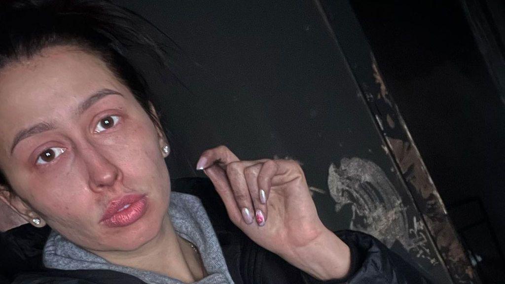 Una campeona olímpica rusa quema su casa al no percibir el olor a humo por el COVID