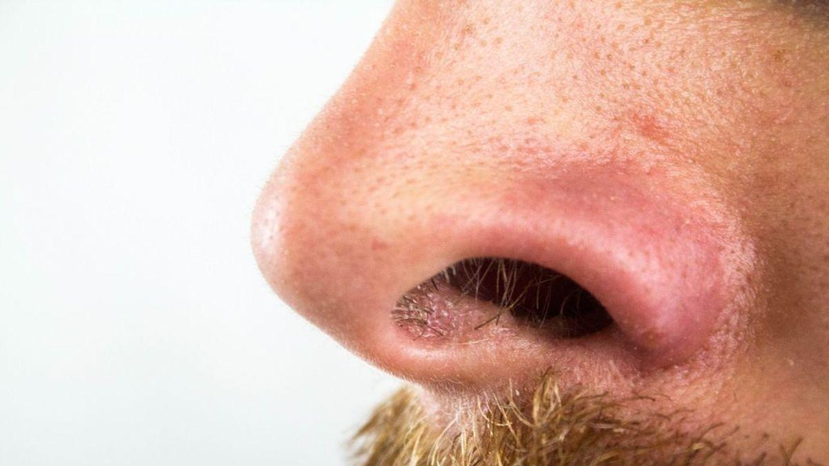 Cuanto más leve está el paciente de covid menos huele