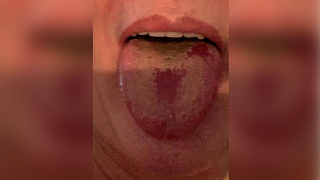 Un epidemiólogo detecta un nuevo síntoma en pacientes con coronavirus, la 'lengua covid'