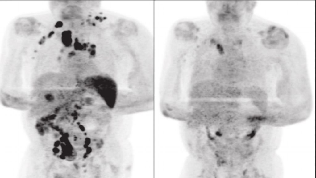 Comparativa en la tomagrafía del paciente antes y después de contagiarse por coronavirus