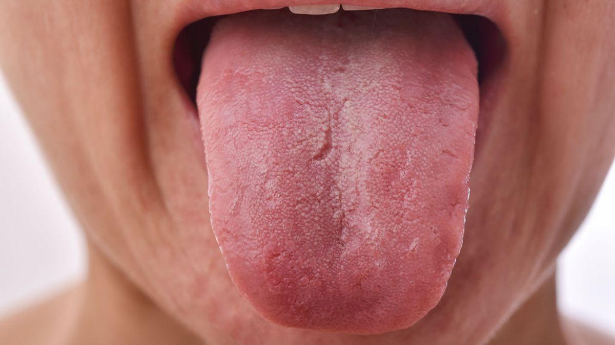 Descubren que la lengua aumentada o 'lengua covid' es un síntoma de coronavirus