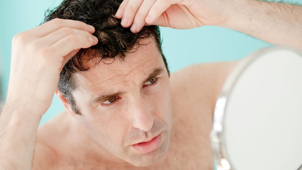 alopecia efecto covid
