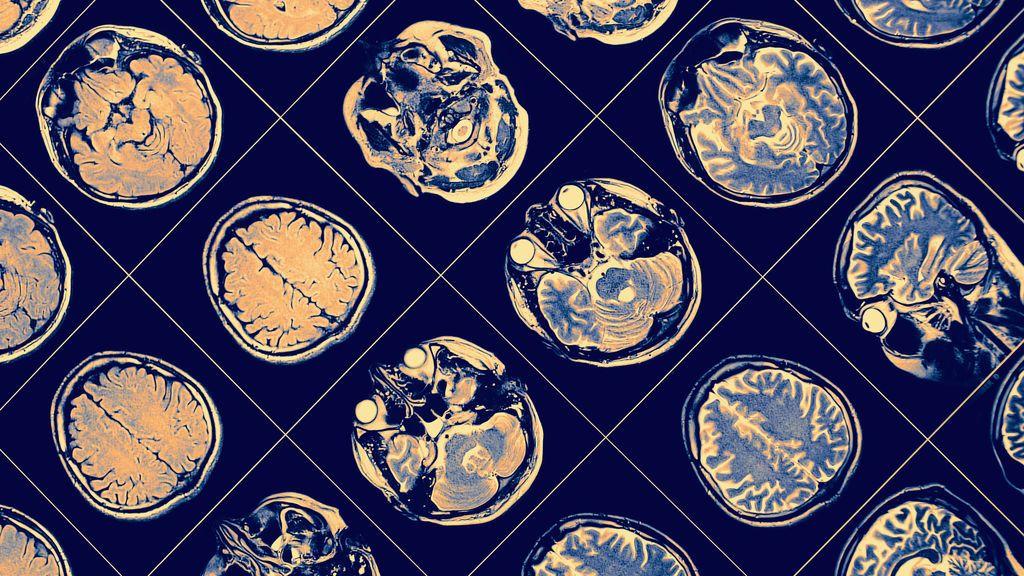 La esquizofrenia es el segundo factor de riesgo de morir de covid, después de la edad