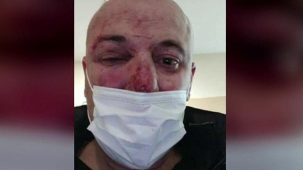 El hombre agredido permanece en el hospital