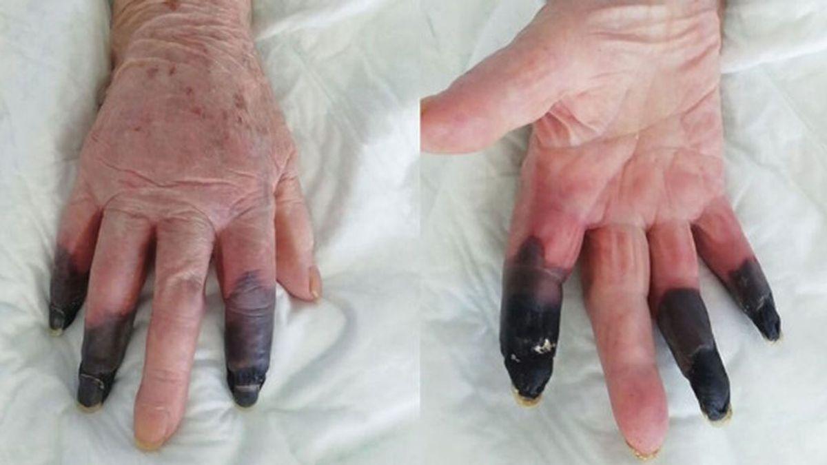dedos covid gangrenados