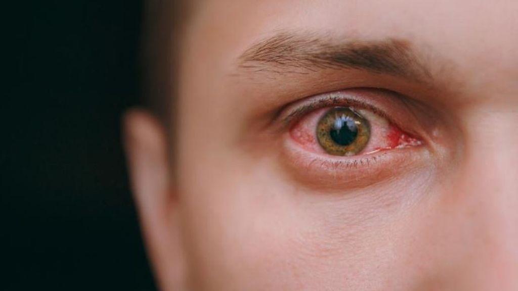 La covid-19 también provoca anomalías oculares