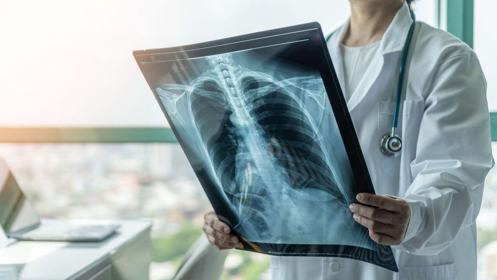 Desarrolla un aparato que permite prever la muerte con 4 días de antelación