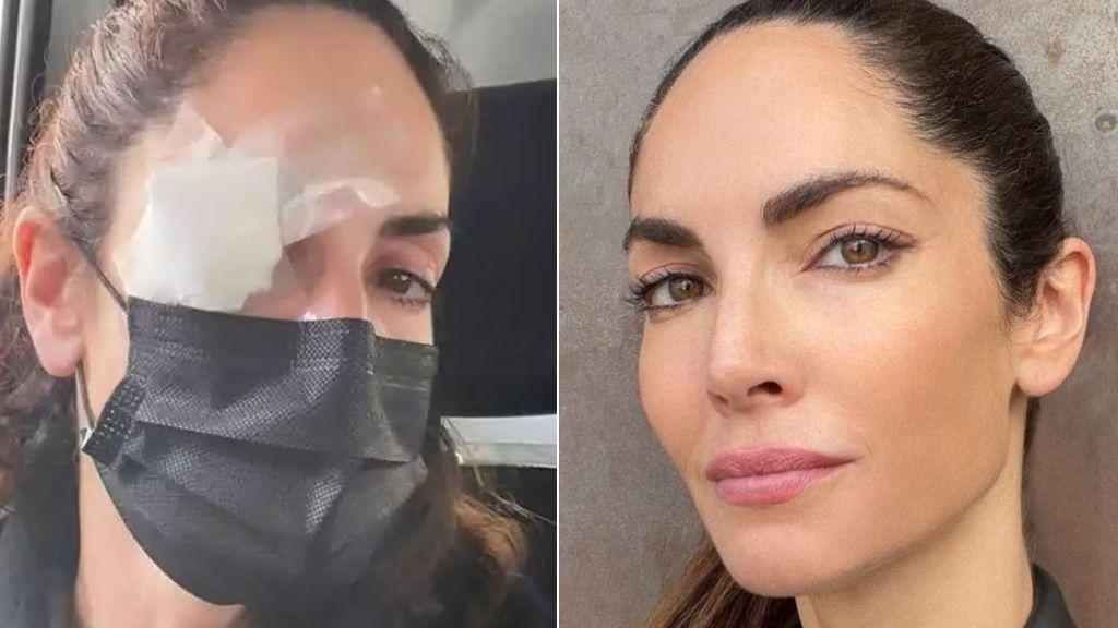 Eugenia Silva preocupa a sus fans tras someterse a una intervención en el ojo