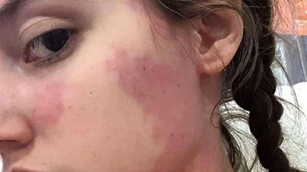El caso de Lauren Wittering, alérgica a todos los alimentos