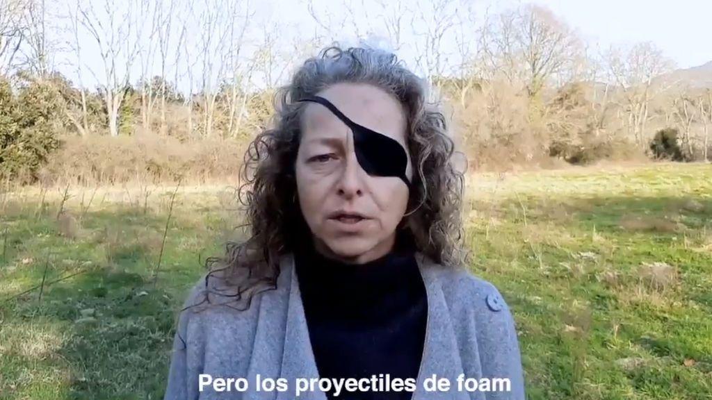 """Manifestantes catalanes que perdieron un ojo piden prohibir las balas de 'foam': """"¿Cuántos heridos más necesitan?"""""""