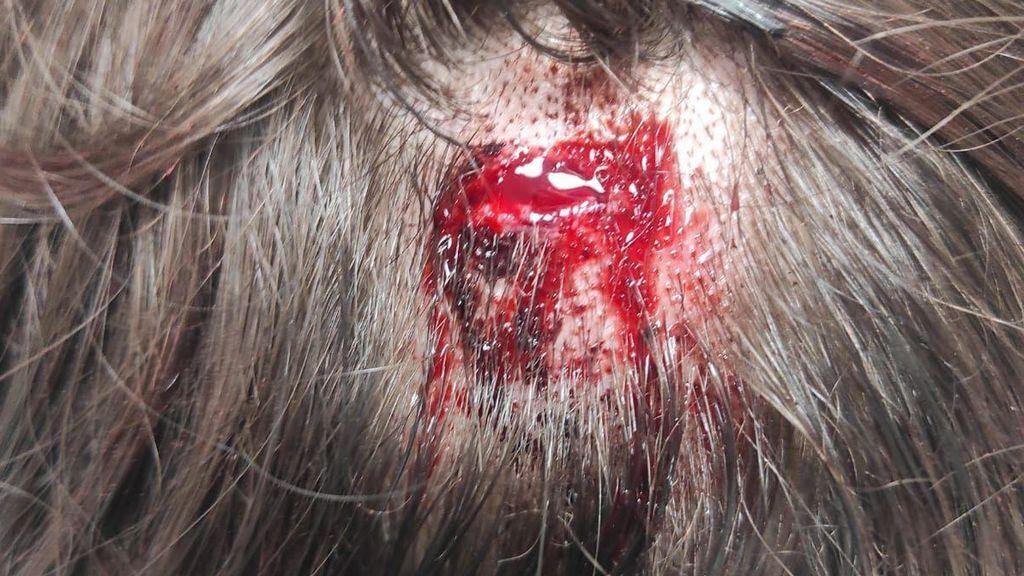 golpe cabeza malaga adolescente