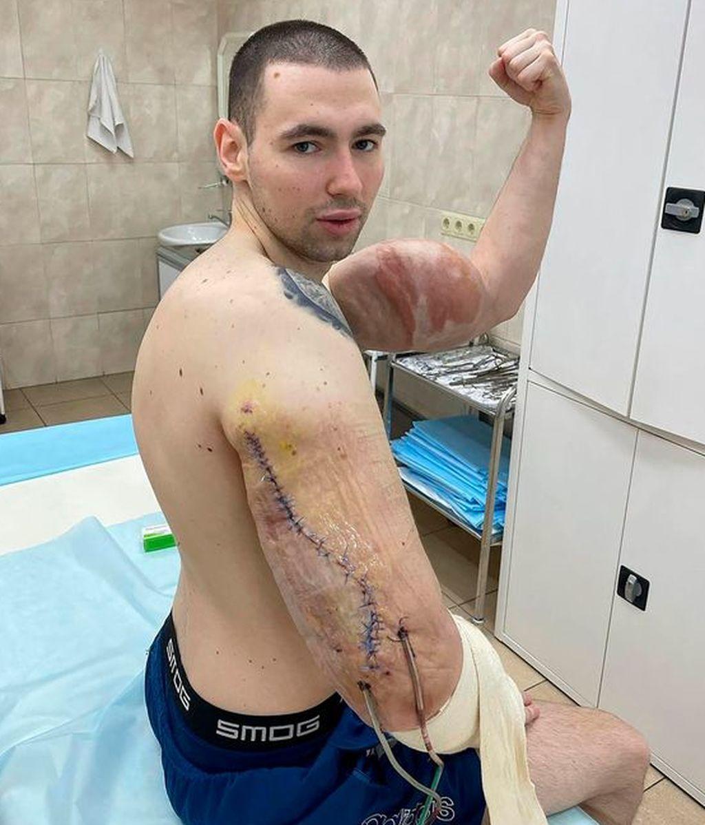 El 'Popeye' de carne y hueso se someterá a una cirugía para rebajar sus músculos falsos