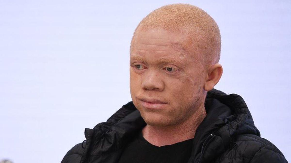 Pedro Cavadas opera con éxito a un joven negro albino con múltiples tumores en la piel