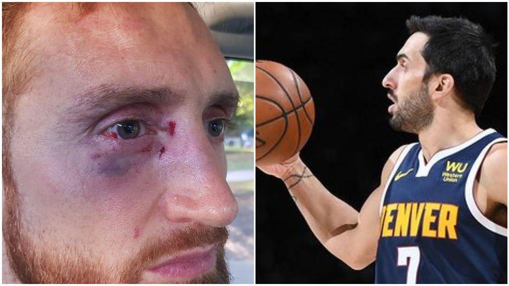 """Campazzo estalla tras ver la brutal paliza que recibió un jugador de baloncesto: """"Repudio por completo la agresión"""""""