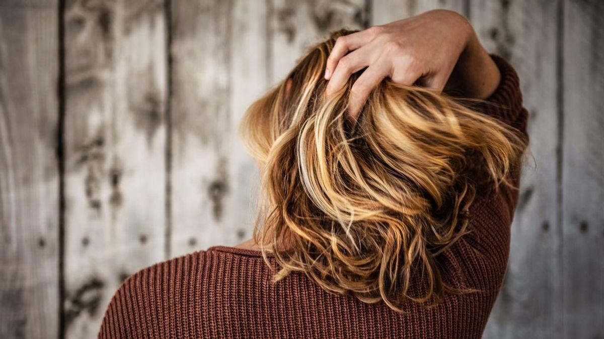 Alopecia femenina, uno de los mayores tabús estéticos