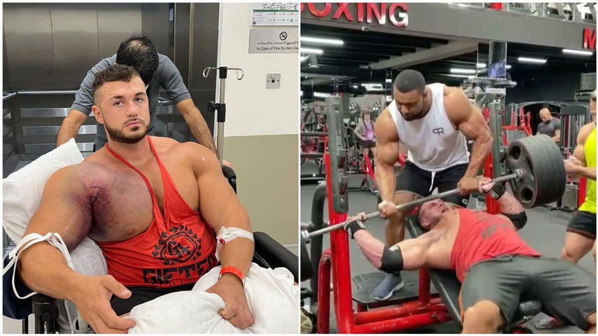 """Un fisioculturista se rompe el pectoral tras levantar 220 kilos: """"Esto es devastador, amenaza su carrera"""""""