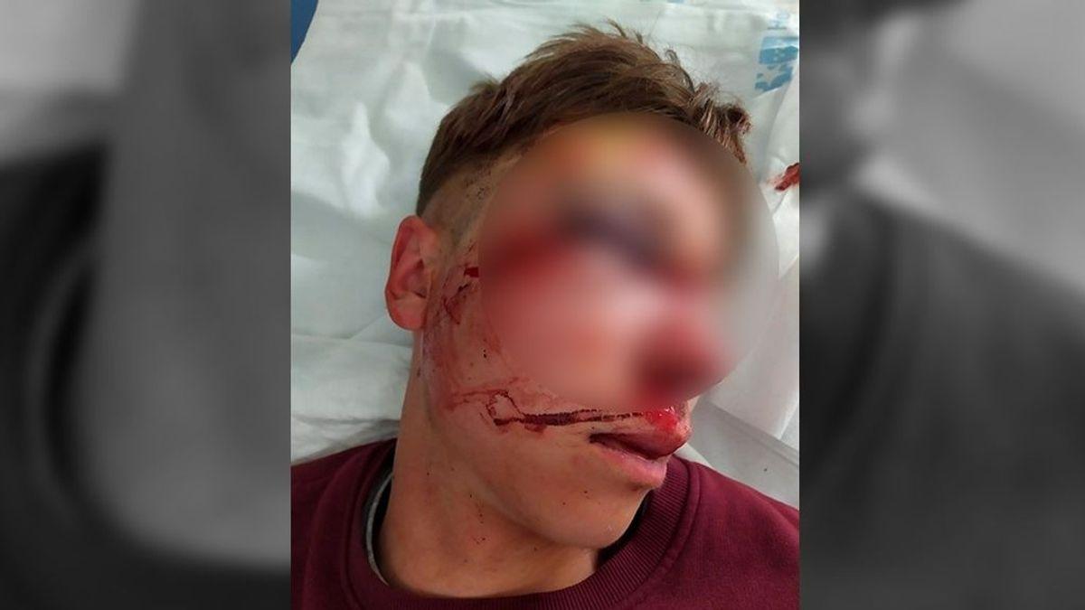 Detenido un joven por pegar con un ladrillo en la cara a otro en una calle de Parla, en Madrid