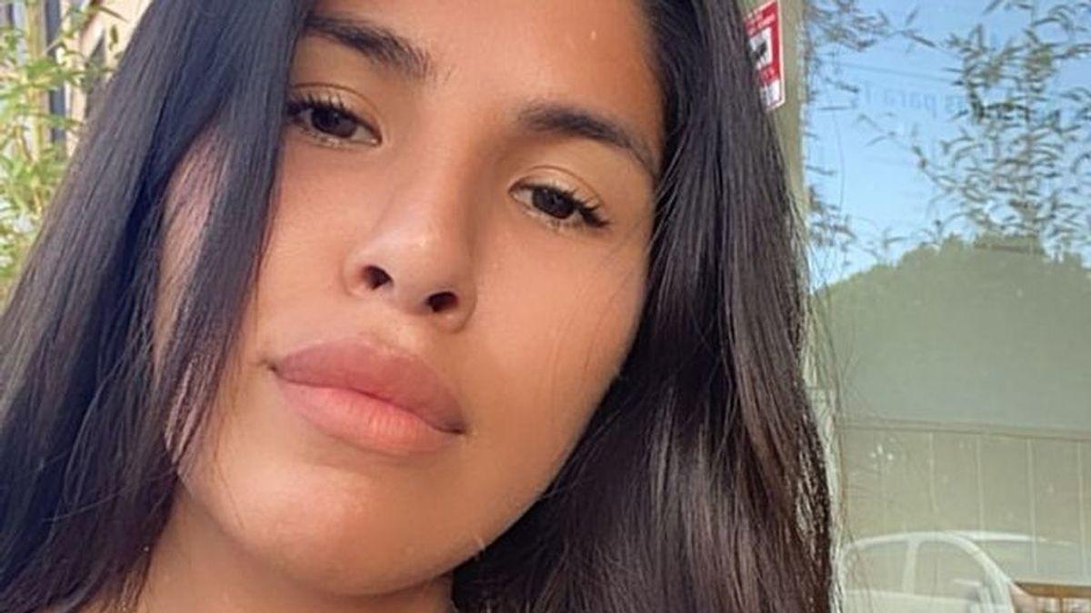 Isa Pantoja se quita el ácido hialurónico y enseña sus labios 'al natural'