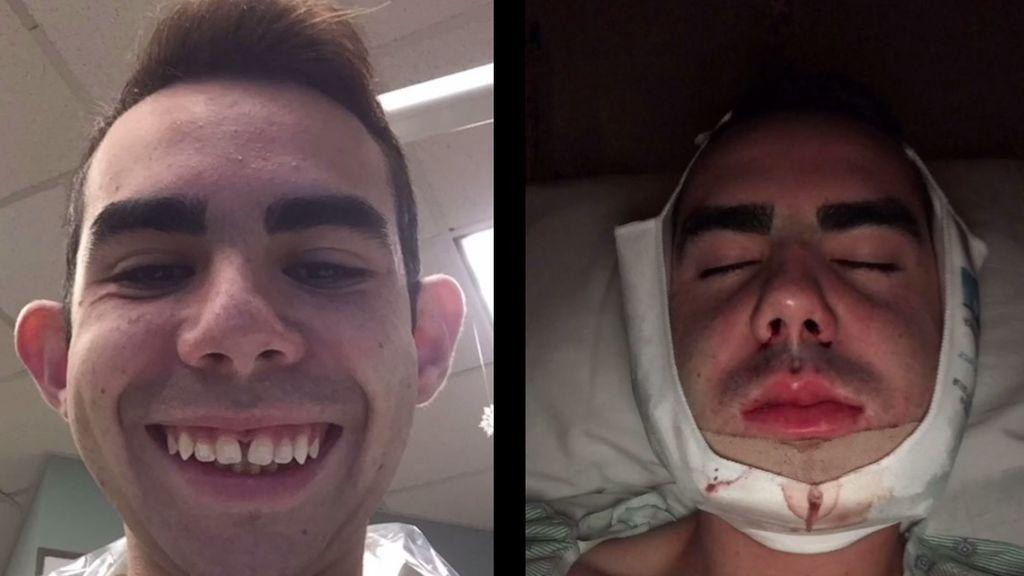 Un joven se opera hasta nueve veces la cara y muestra todo el proceso