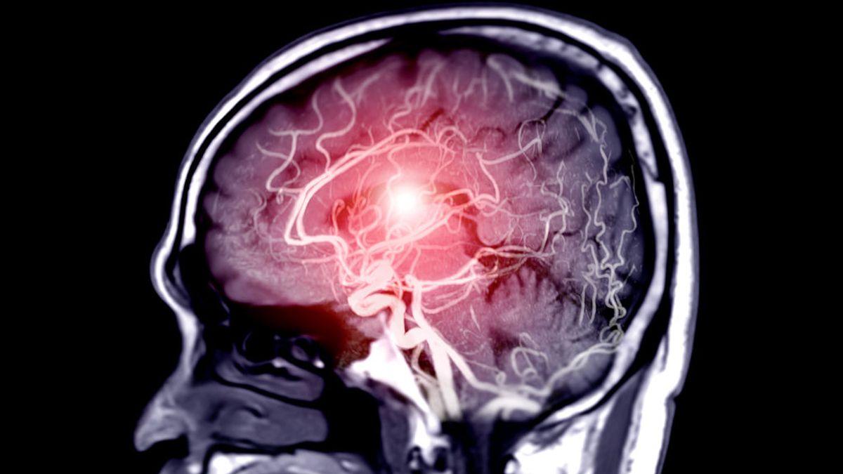 El riesgo de sufrir trombos cerebrales es 10 veces mayor al enfermar de covid que al vacunarse