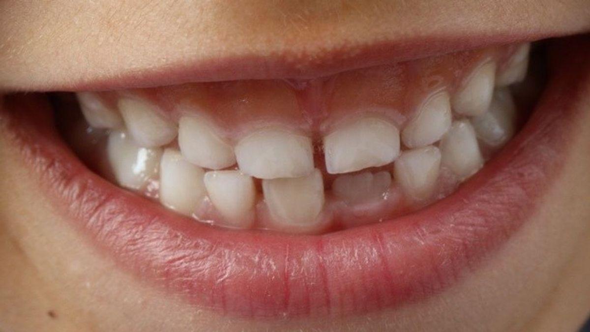 Una deficiente higiene bucal y la periodontitis pueden favorecer casos más graves de covid