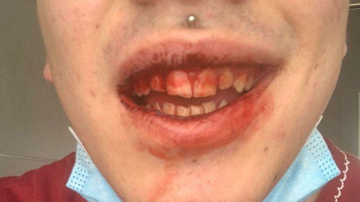 Raul, el joven que ha recibido una paliza de su familia por ser homosexual y al que amenazan con quemar vivo