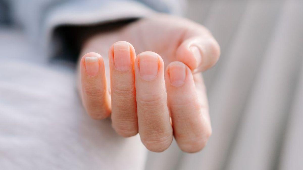 Líneas de Beau, las hendiduras en las uñas que también pueden ser efecto del coronavirus