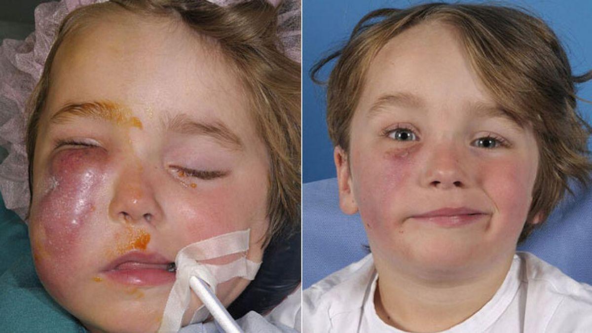 Un niño de cuatro años sufre parálisis facial tras ser mordido por una cobra mientras dormía
