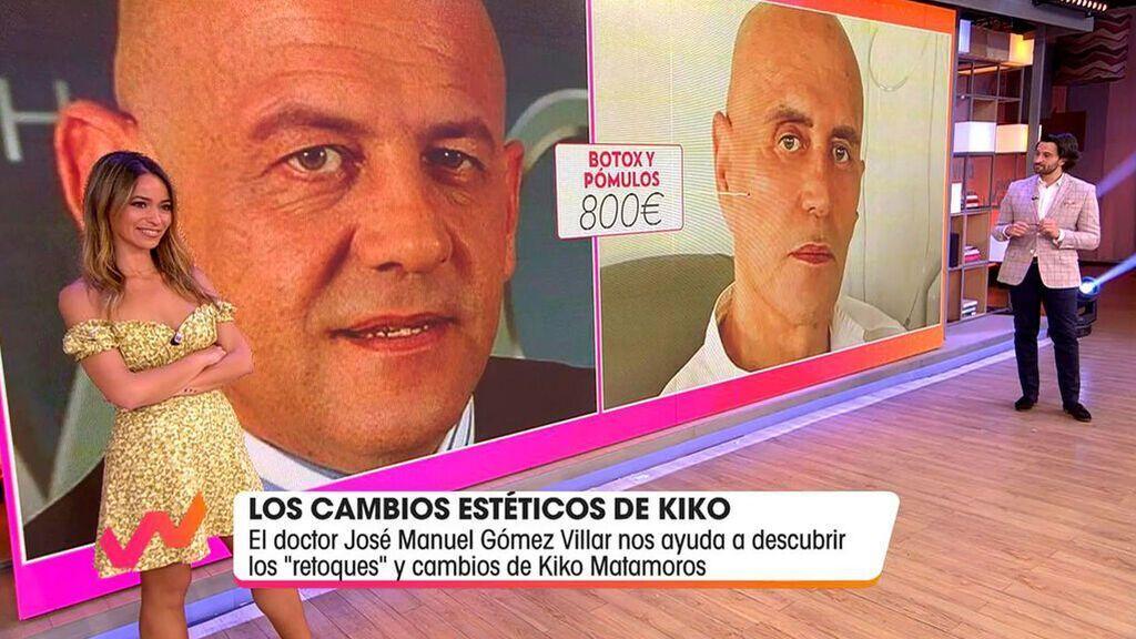 Los cambios estéticos de Kiko Matamoros Viva la vida 2021 Programa 410 reemplazo