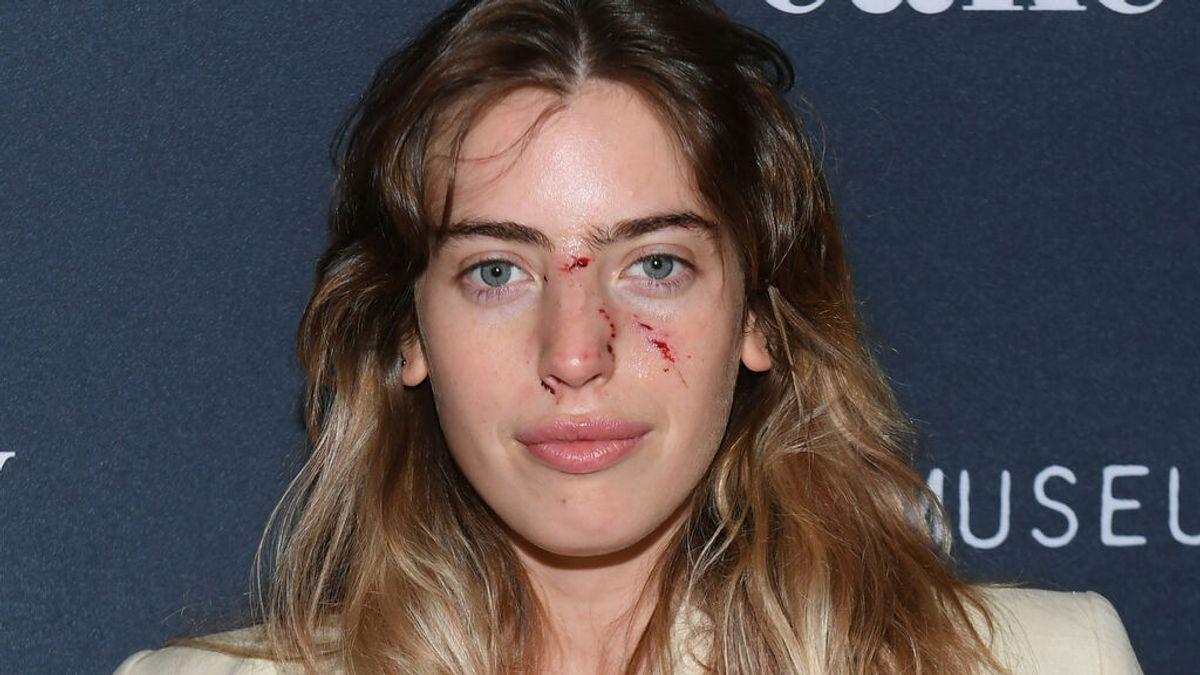 Clara, hija Ewan McGregor, posó  en un estreno del actor con la cara recién mordida por un perro