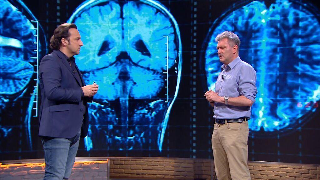 Te explicamos cómo funciona tu cerebro