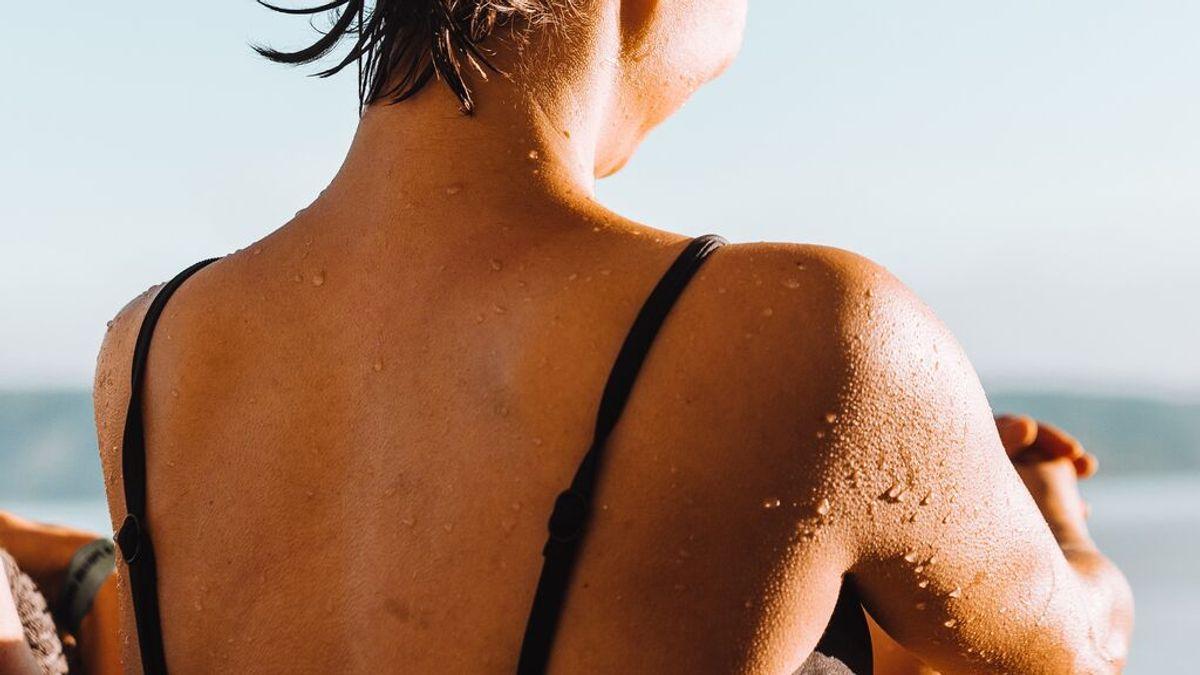 Remedios caseros para las quemaduras solares de este verano