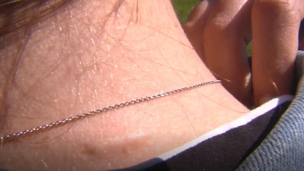 Noelia muestra las marcas que le dejó su expareja que sale de la cárcel
