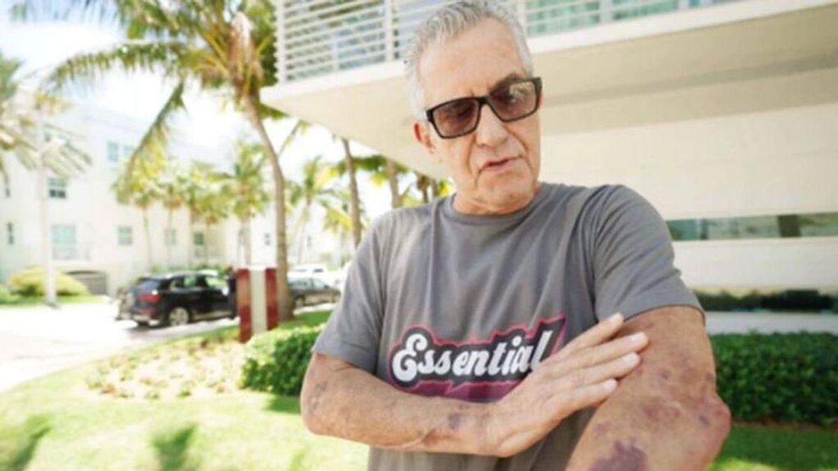 """Uno de los superviventes del derrumbe del edificio en Miami: """"Oía los gritos de mis vecinos pidiendo ayuda"""""""