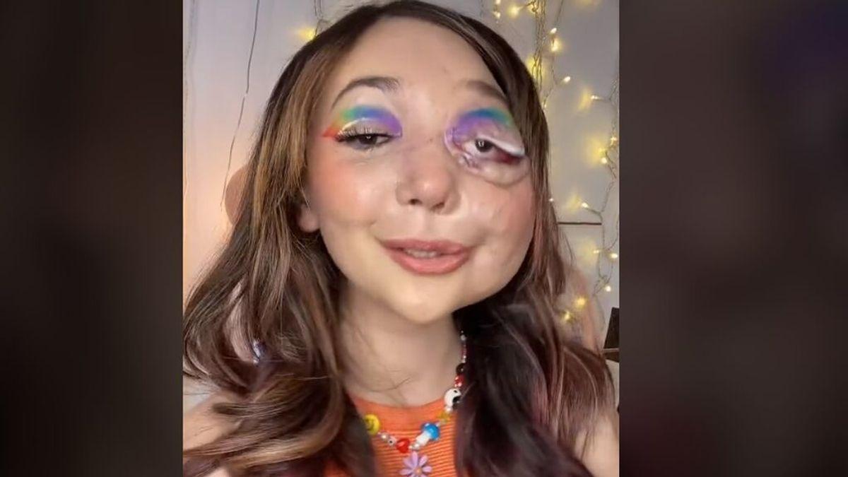 Una joven con un tumor en la cara impresiona a la Red con su habilidad con el maquillaje