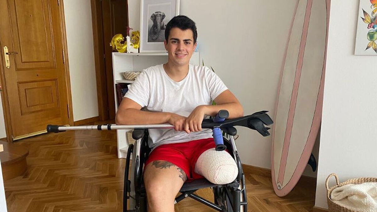 El baionés Álvaro Santalla ha recaudado más de 50.000 euros para la prótesis de su pierna izquierda