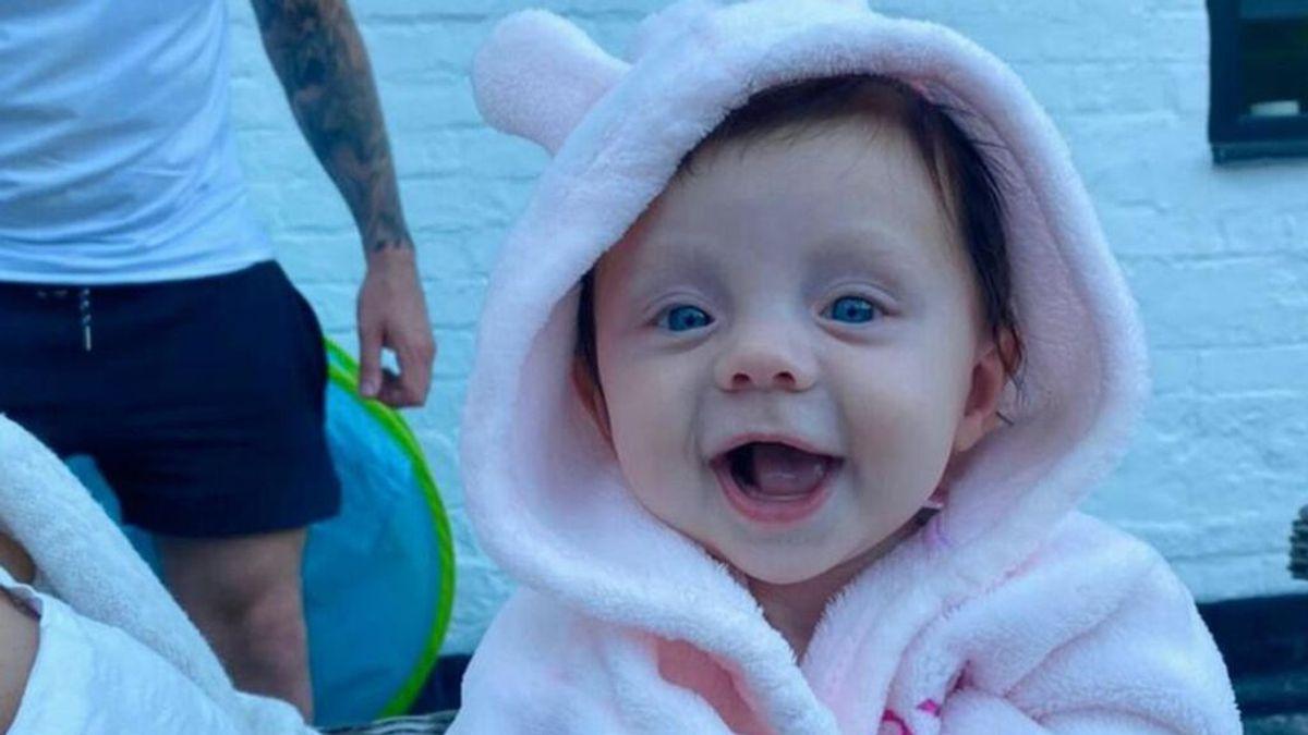 Lexi Robins, una bebé de cinco meses que sufre la enfermedad del hombre de piedra