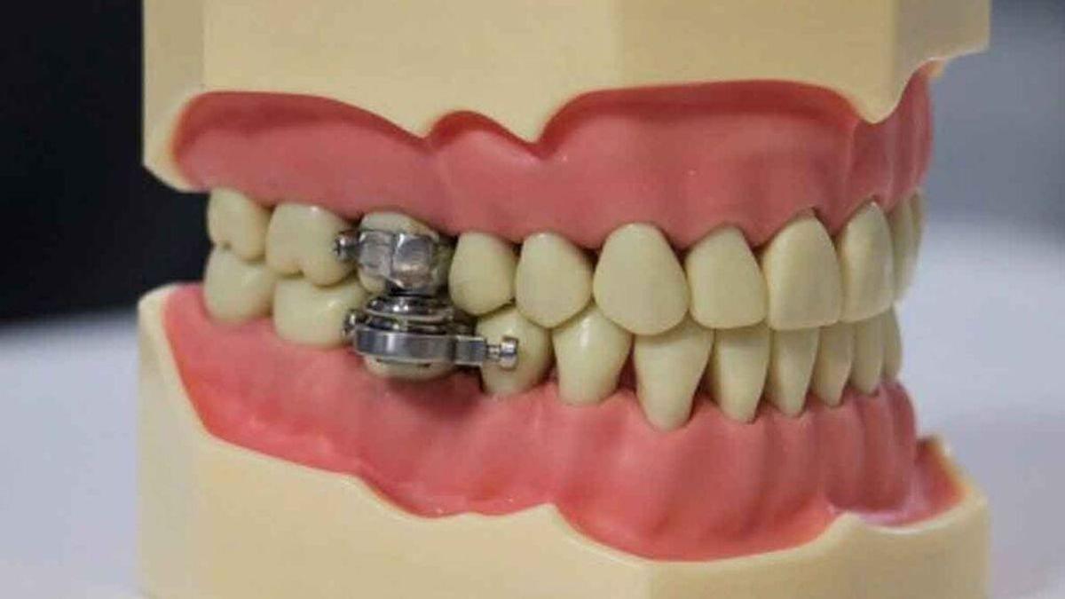 """El candado dental para adelgazar que ha indignado a las redes y a los expertos: """"Es un elemento de tortura"""""""