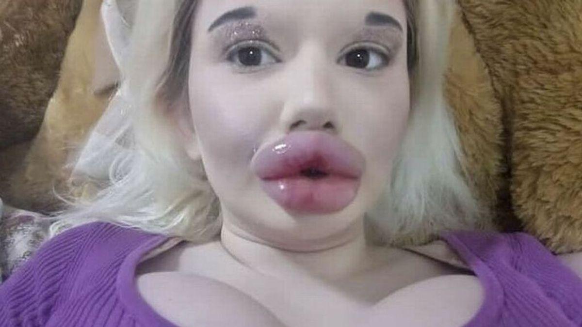 La mujer con los labios más grandes del mundo quiere seguir aumentándolos pese al rechazo de su familia