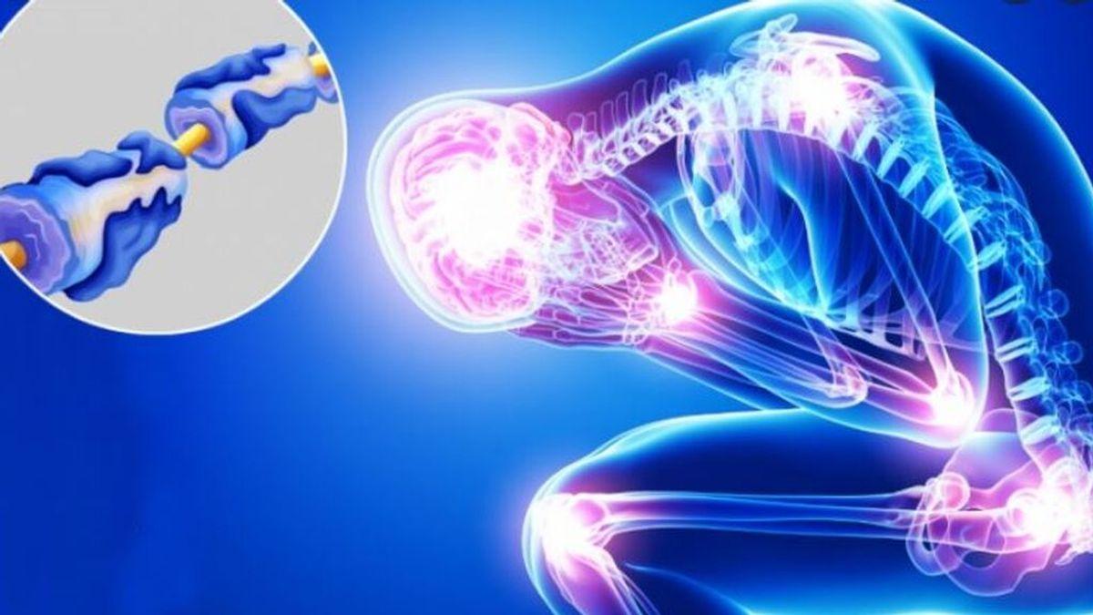 Qué es el síndrome de Guillain-Barré:  síntomas y tratamiento