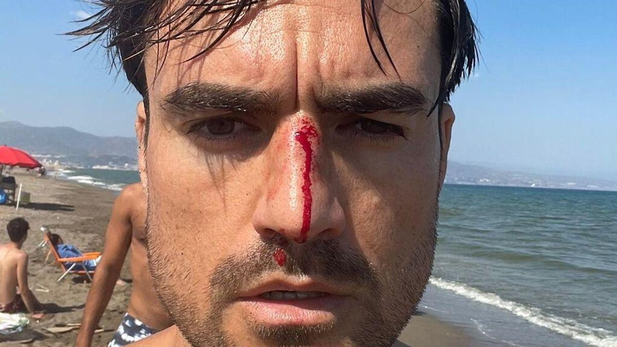 "Denuncia una agresión homófoba en una playa canina de Málaga: ""Acércate maricón, que te voy a matar"""