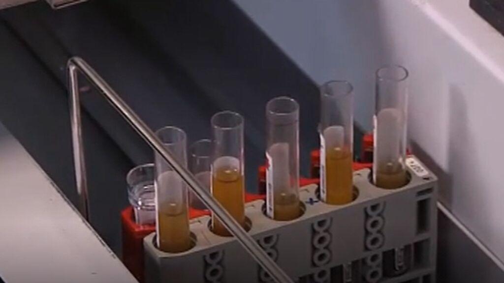 Con la vacuna ya puesta: ¿Soy inmune?