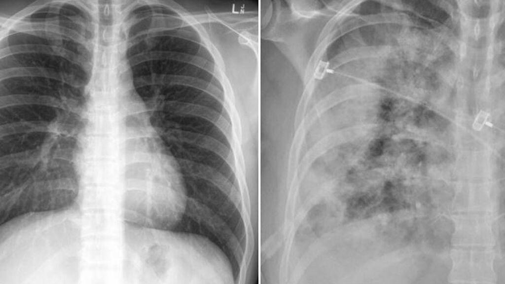 La radiografía del doctor Faheem Younus que demuestra cómo las vacuna nos protegen aunque nos contagiemos