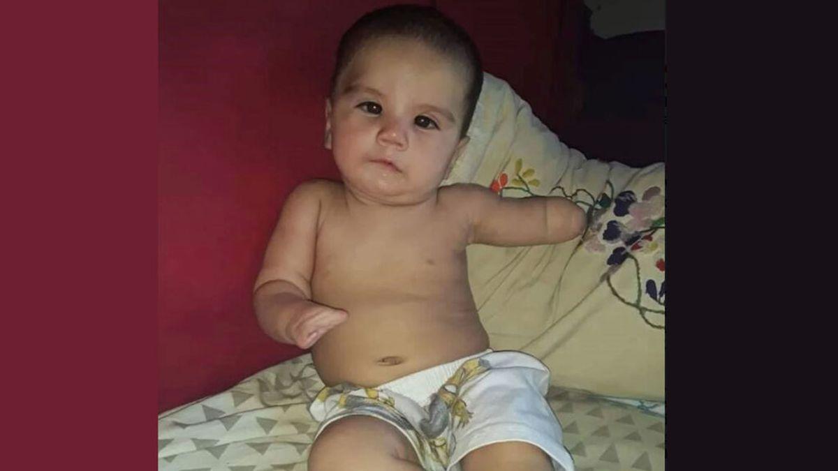 La familia de un bebé argentino que nació sin un brazo, una mano y un pie pide ayuda para comprar unas prótesis
