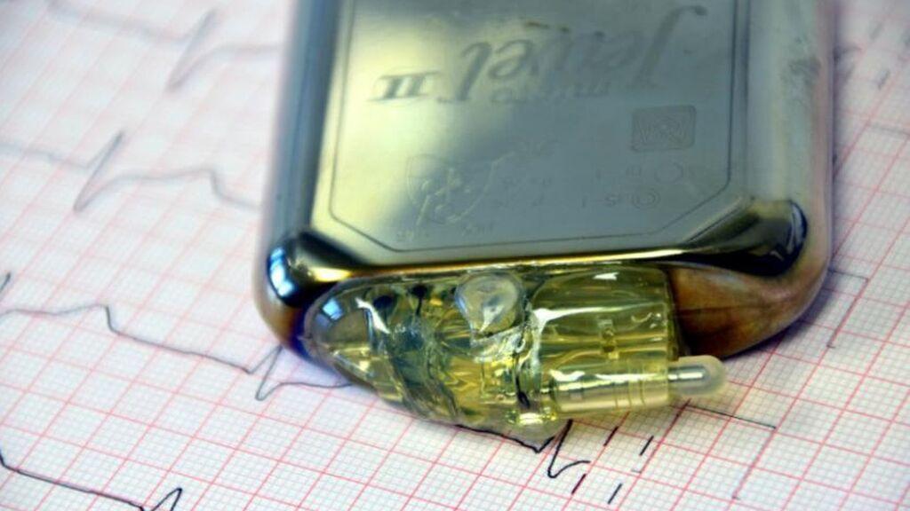 Prueban un marcapasos sin pilas que usa la energía del corazón para alimentarse