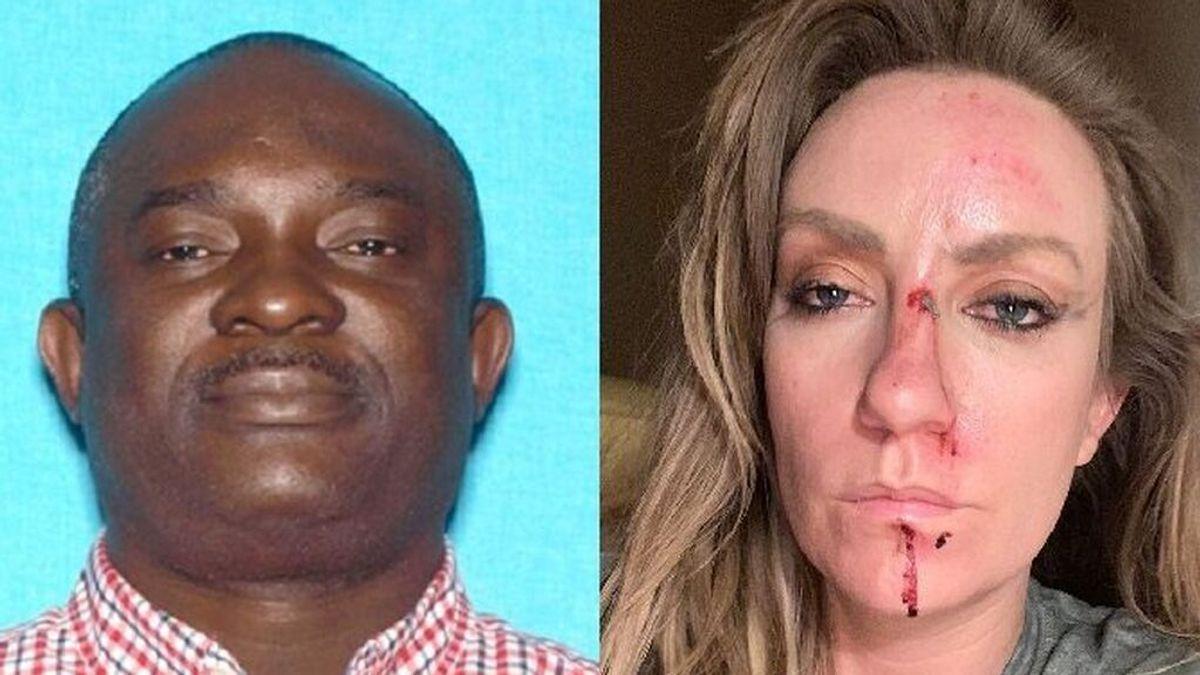 Arrestado un conductor de VTC por agredir brutalmente  a la cantante country Clare Dunn