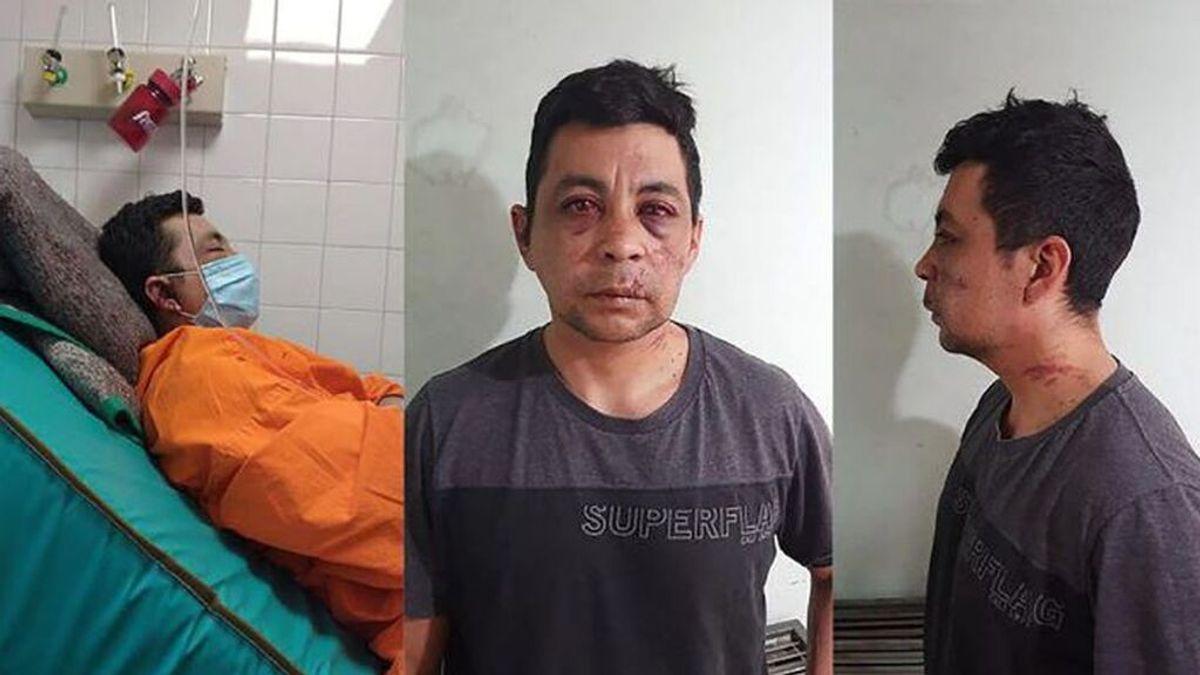 Muere un enfermero argentino de un infarto que fue linchado por sus vecinos cuando se contagió de covid